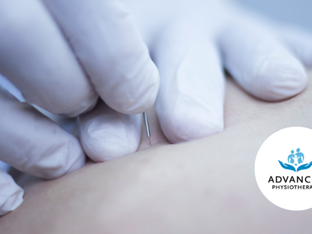 Dry Needling - More than just pins and needles.