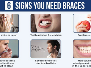 Signs You Need Braces