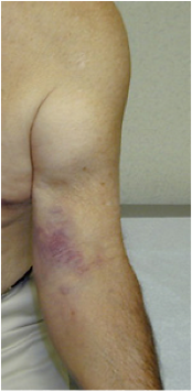 Distal Biceps Tear