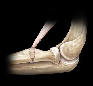Distal Biceps Repair (courtesy Arthrex)