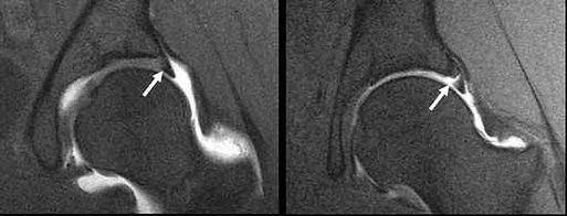 MRI Labral Tear