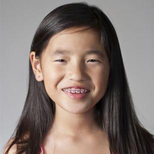 Interceptive Orthodontic Treatment for Children (age Six)