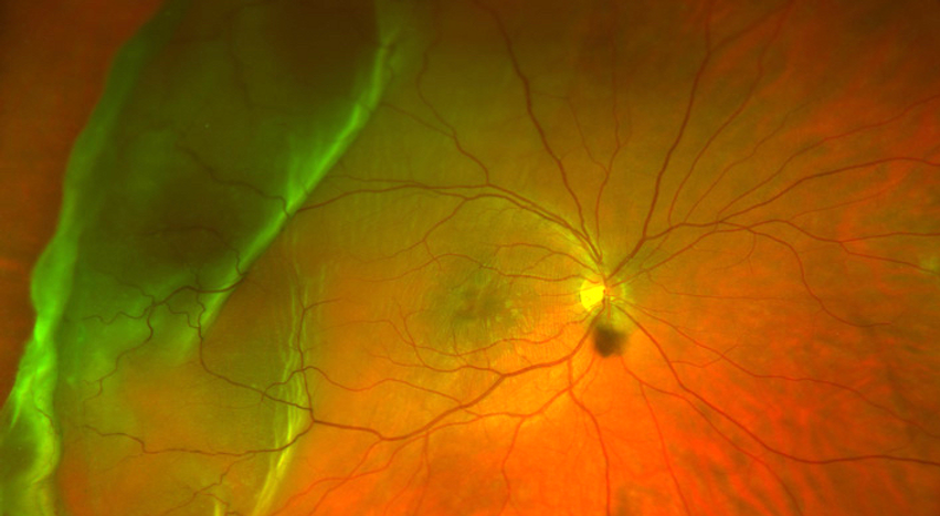 Retinal-detachment-.png