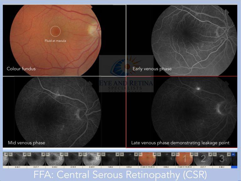 central serous retinopathy CSR CSCR chorioretinopathy FFA fundus fluorescein angiography retina macula ophthalmology