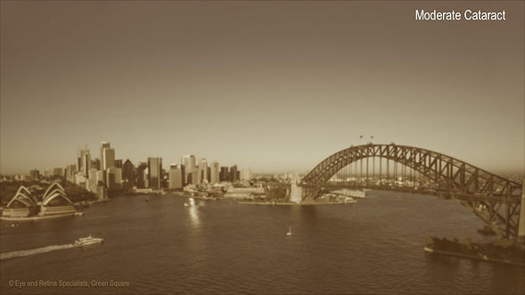 sydney-harbour-early-moderate-cataract.j