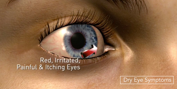 Dry Eye symptoms.jpg