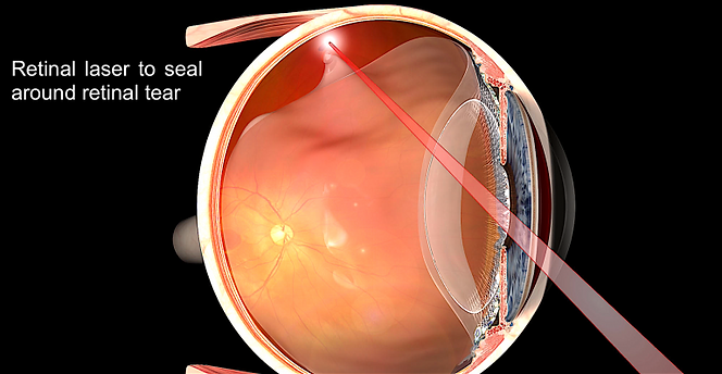 retinal-laser-for-tear-768x398.png