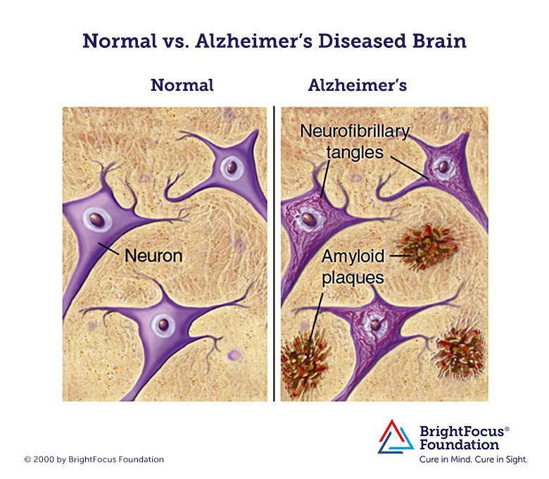 Alzheimer's Disorder