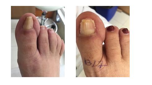 טיפול אוטוגריפ לפני ואחרי.png