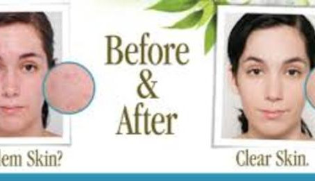 Eminence Organics Clear Skin Probiotic Line: