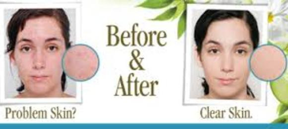eminence clear skin treatments