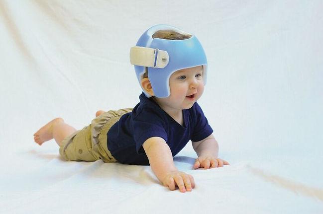 Plagiocephaly Helmet