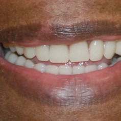 Smile made by Madison Pine Dental Clinic