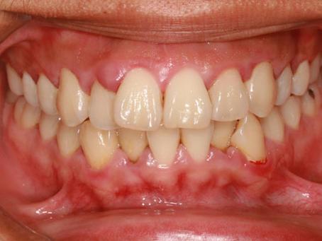 60644 Dentist | Understanding Periodontal Disease