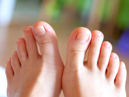 Home Remedies to Treat Ingrown Toenail
