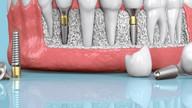 Implante Dentário - Sorria sem Medo