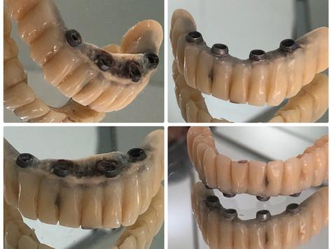 Manutenção do Implante e Prótese