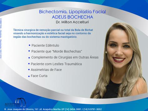 Bichectomia, Adeus Bochechas