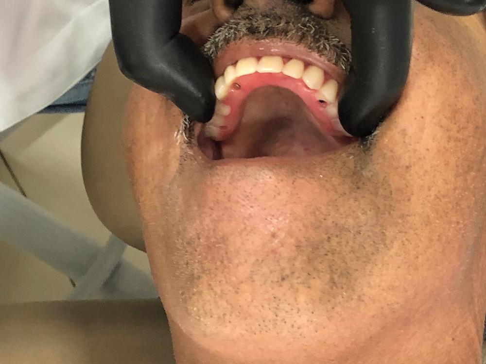 Fixação da prótese sobre implantes ( protocolo ) nos implantes dentárioa