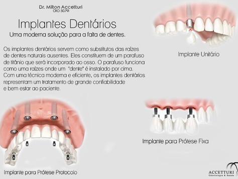 Implante Dentário, Solução para a falta de dentes - Clinica Accetturi Dr. Milton