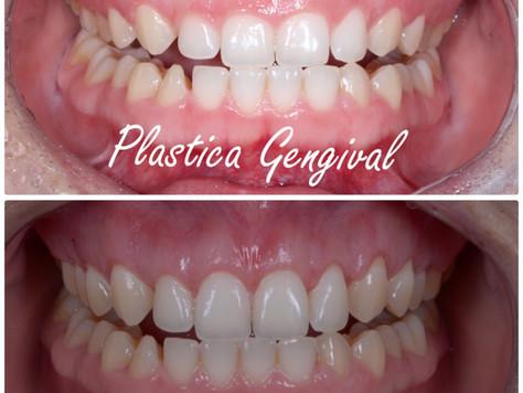 Gengivoplastia - Adeus sorriso gengival