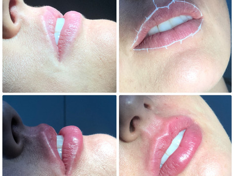 Escultura e Preenchimento Labial - Accetturi Implantes e Estética