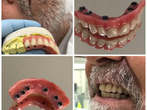 Implantes Dentários e Prótese