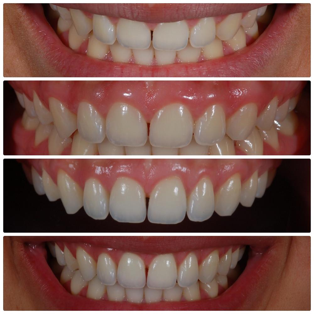 Dr Milton Accetturi realiza a correção de sorriso gengival - Marilia S.P