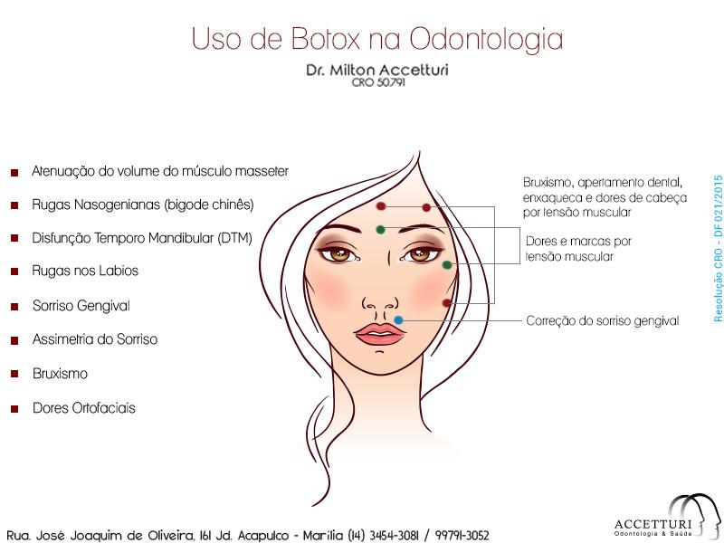 Botox na odontologia