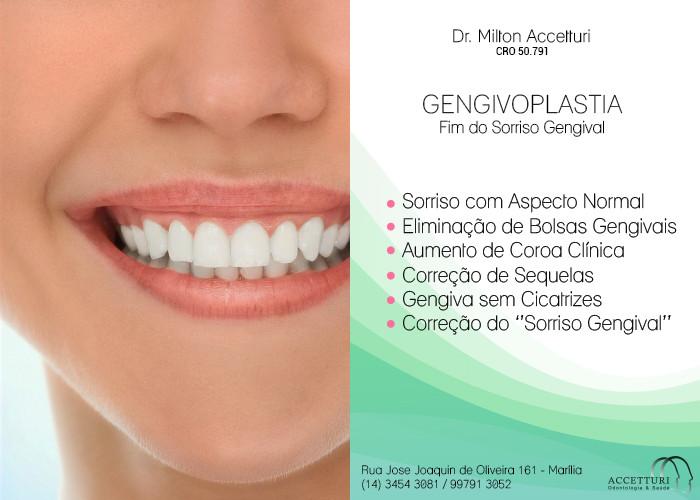 Genvivoplastia