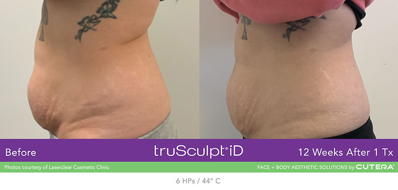 truSculpt iD-Laserclear Cosmetic Clinic-