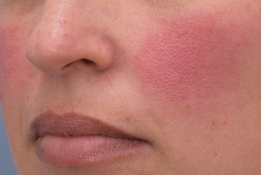 Rosacea+flare+up.jpg