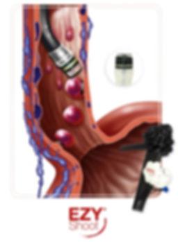Лигатор эндоскопический, лигатор для варикозно-расширенных вен пищевода
