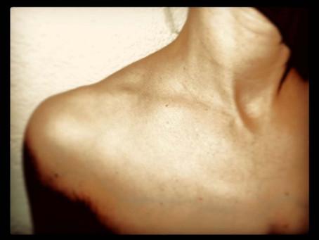 Schmerzen und Taubheit im Arm? - Thoracic Outlet Syndrom