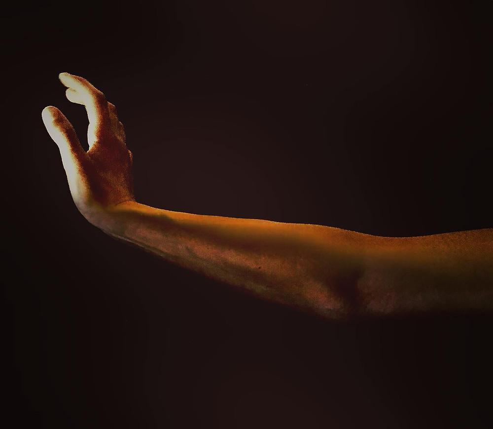 hypermobilität, physiotherapie radiuszwei oberwil