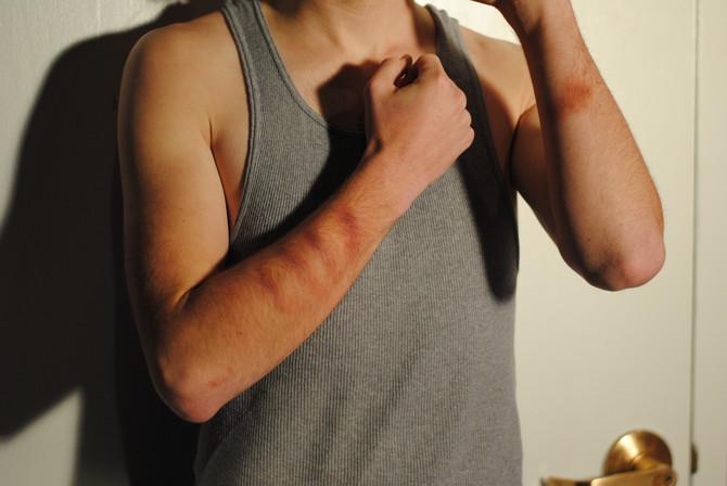 Arm Bruising