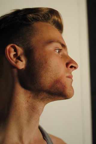 Facial Bruising