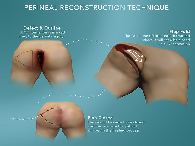 Perineal reconstruction