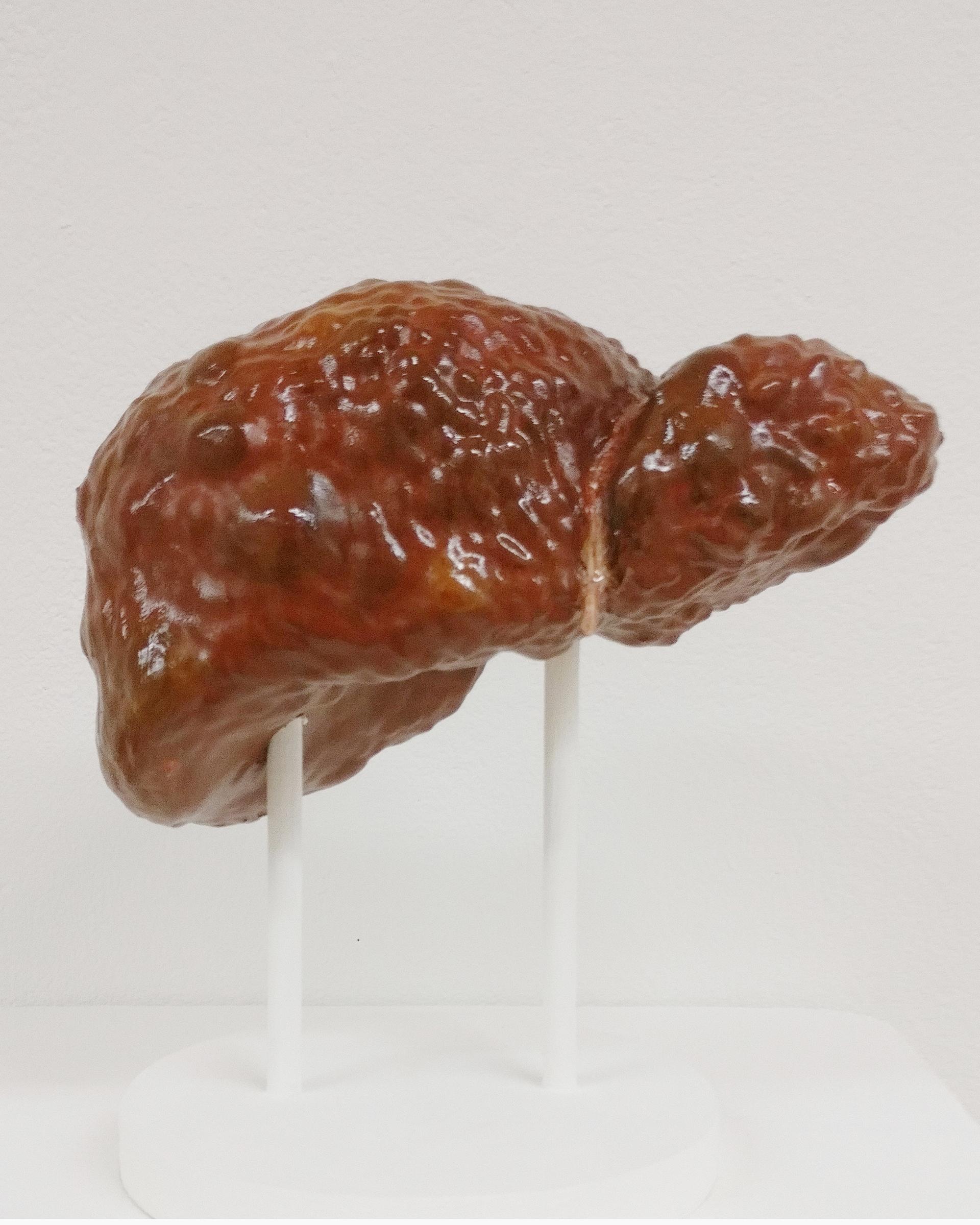 Liver Cirrhosis 3D print