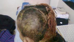 Ghajini scar
