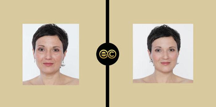 Before-After-Laser-Treatmen.jpg