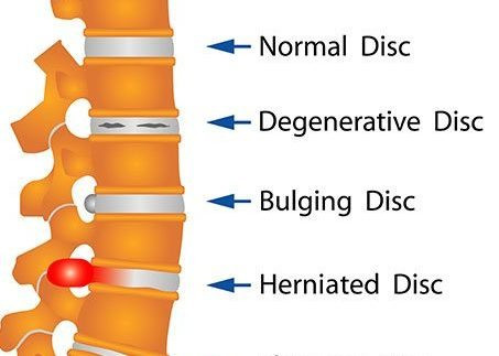 Normal Disc, Degenerative Disc, Bulging Disc, Herniated Disc.