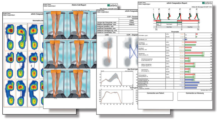 Gait-Analysis-Report.jpg