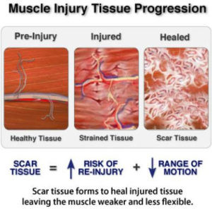 Adverse effects of the Muscle Injury.