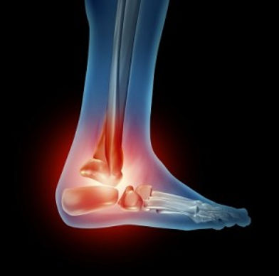 Walking-Rehabilitation.jpg