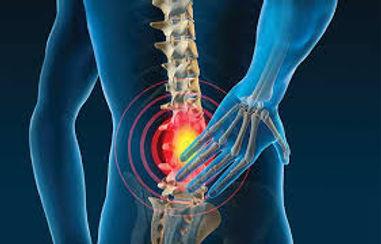 Back-Pain-Treatment.jpg
