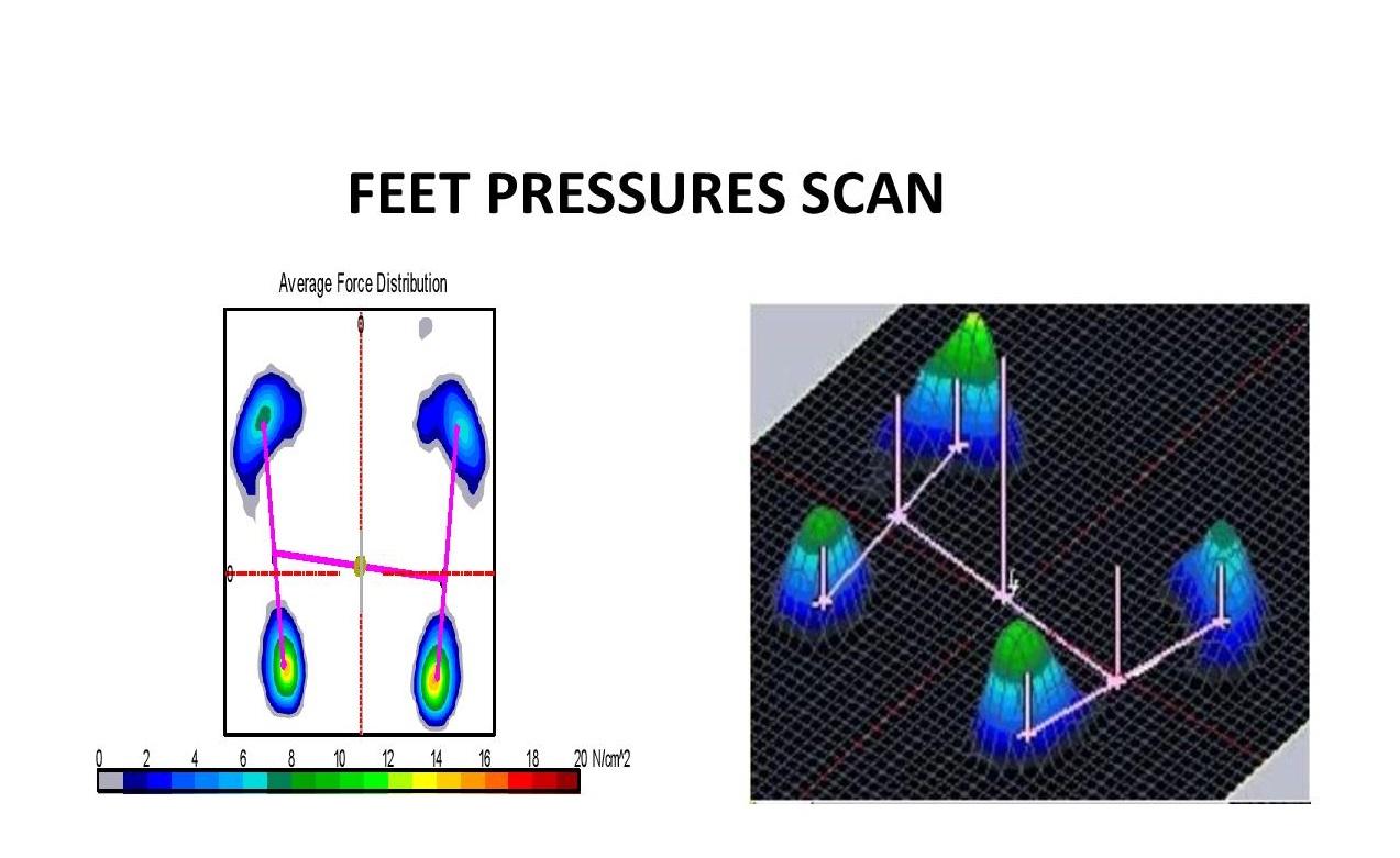 Feet-Pressures-Scan.jpg