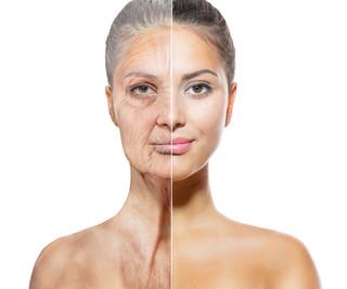 ¡Conoce las principales causas del envejecimiento prematuro!