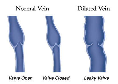 Vein Conditions