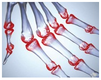 pilates artrite reumatoide